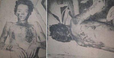 Η Σπυριδούλα με εμφανή τα σημάδια από τα εγκαύματα που της προκάλεσαν οι Βεϊζαδέ